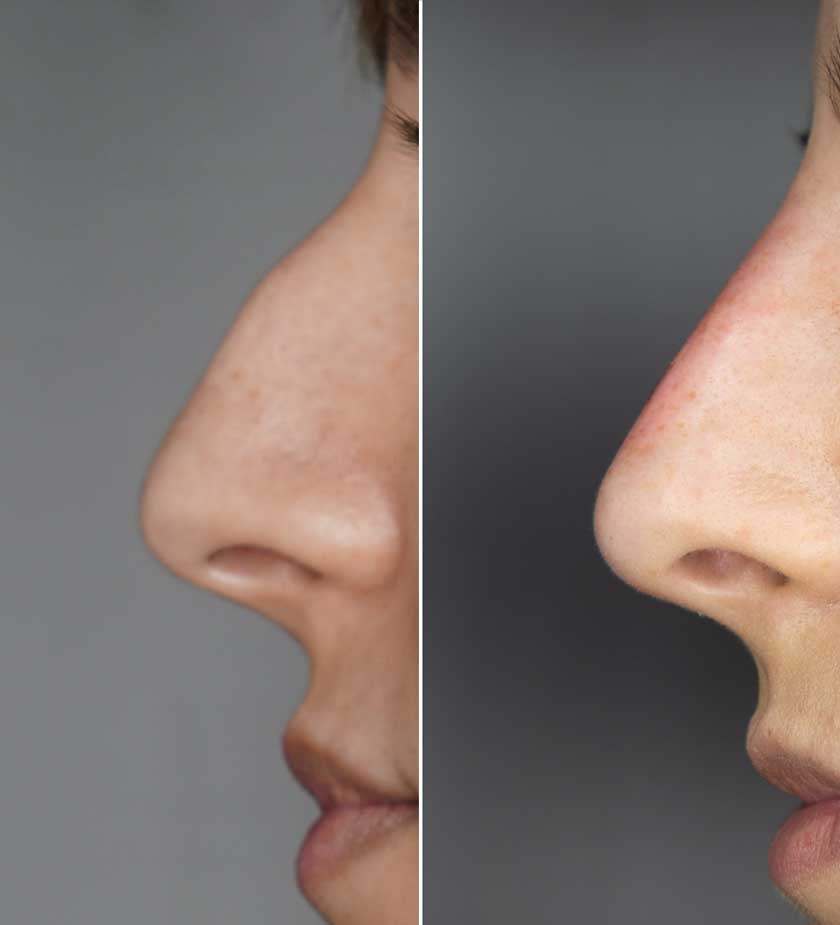 Botox-viersen-Nasenkorrektur-ohne-op-nase-begradigen-Mönchengladbach-Magdalena-nadurska-Korschenbroich-Willich-Wegberg-Kaarst-Tönisvorst-Erkelenz