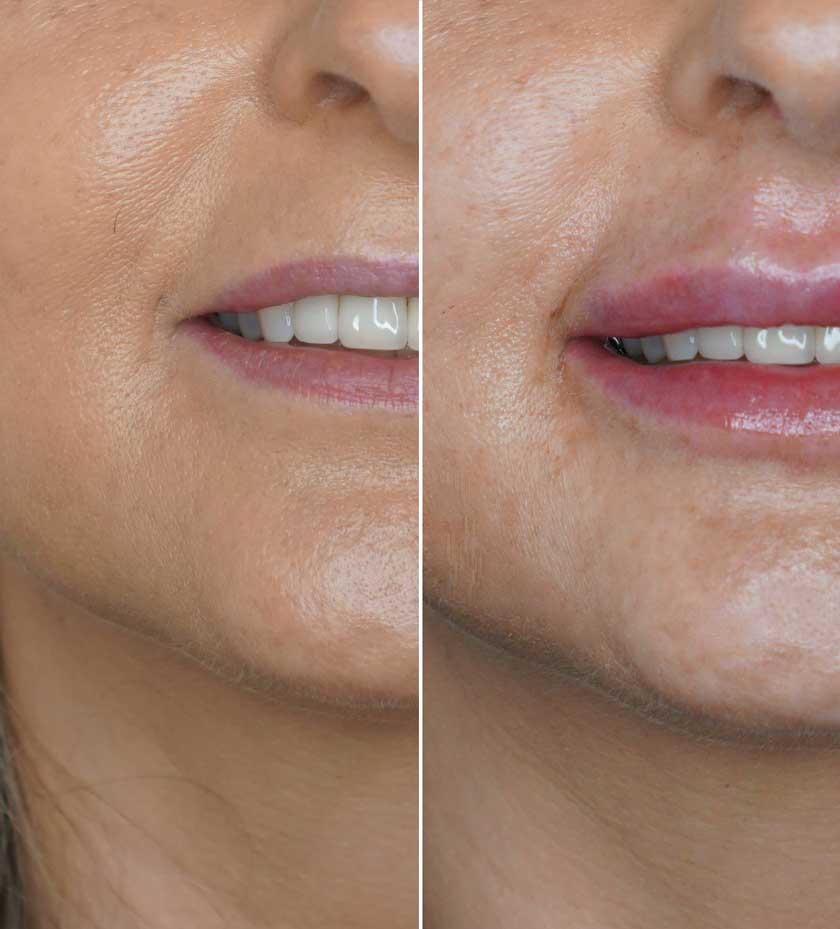 Lippenkorrektur-Volumenaufbau-lippen-aufspritzen-botox-hyaluron-gladbach-schöhnheitspraxis-korschenbroich-viersen-willich