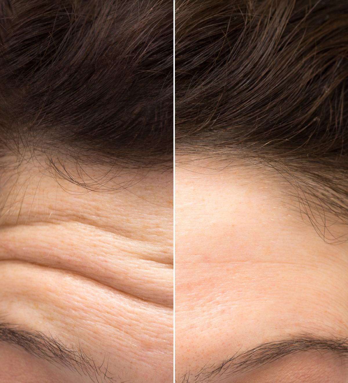 Stirnfalten entfernen Duisburg Botox hyaluron faltenbehandlung mn aesthetik Hyaluronsäure Korschenbroich Viersen Willich Wegberg Kaarst Tönisvorst