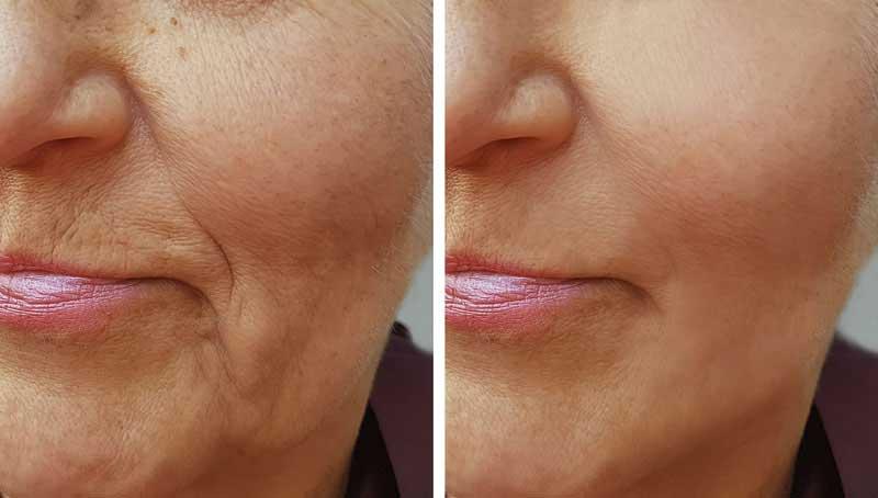 faltenunterspritzung-moenchengladbach-anhebung der mundwinkelfalten-botox-hyaluron-viersen-willich-wegberg