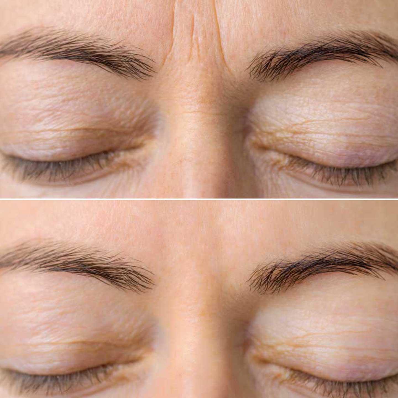 zornesfalte-glabellafalte-stirn-entfernen-Botox-Mönchengladbach-Korschenbroich-Viersen-Willich-Wegberg-Kaarst-Tönisvorst-Erkelenz-Grevenbroich-Nettetal-Neuss